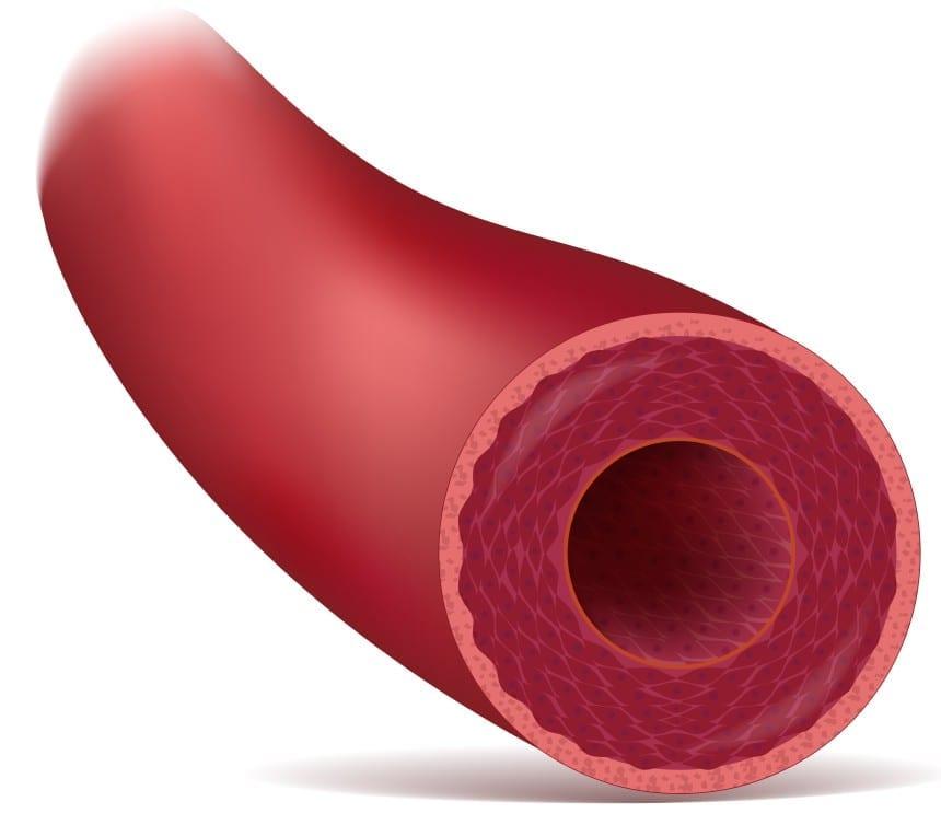 insulin resistance  homocysteine  u0026 metabolic syndrome